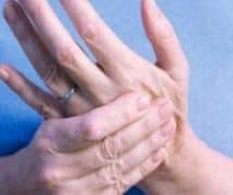 CMC Thumb Arthritis