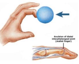 finger splints for mallet finger
