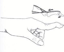 Swan Neck Finger Deformity