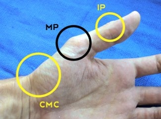 cmc thumb joint, mp thumb joint, ip thumb joint