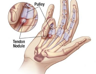 Image above details Trigger Finger but the same information applies to Trigger Thumb