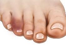 buddy taping broken toe