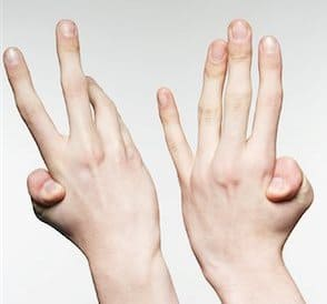 double jointed fingers hypermobile ehlers danlos syndrome