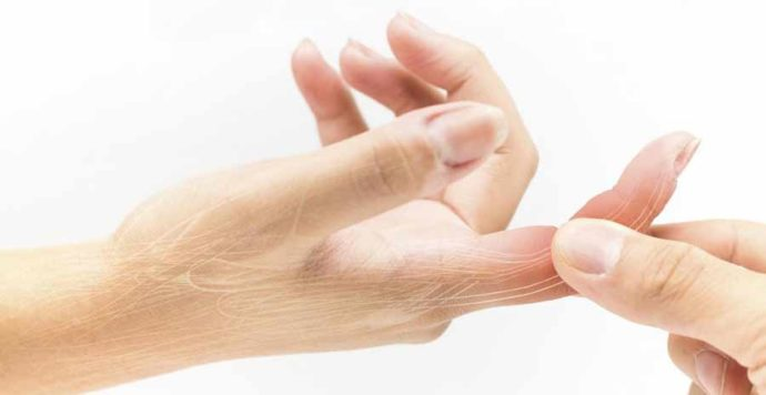 Dupuytrens Contracture stuck fingers