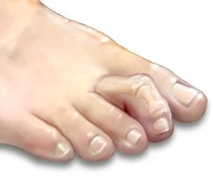 my toes are crooked hammertoes
