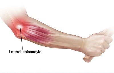 lateral epicondyltis also known as tennis elbow