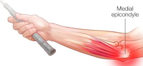 medial epicondylitis also known as tennis elbow