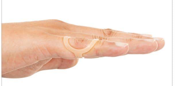 swan neck deformity with oval-8 finger splint