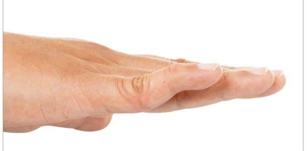 swan neck deformity without oval-8 finger splint